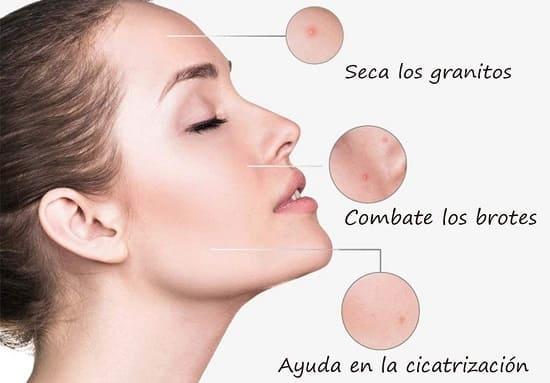 zowix tratamiento anti acne